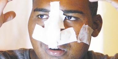 PM será investigado por atirar no rosto de jovem, que engoliu projétil (2)